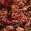 Hemofilija.jpg