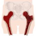 Osteoporoze.jpg