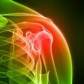 reumatoidinis-artritas.jpg