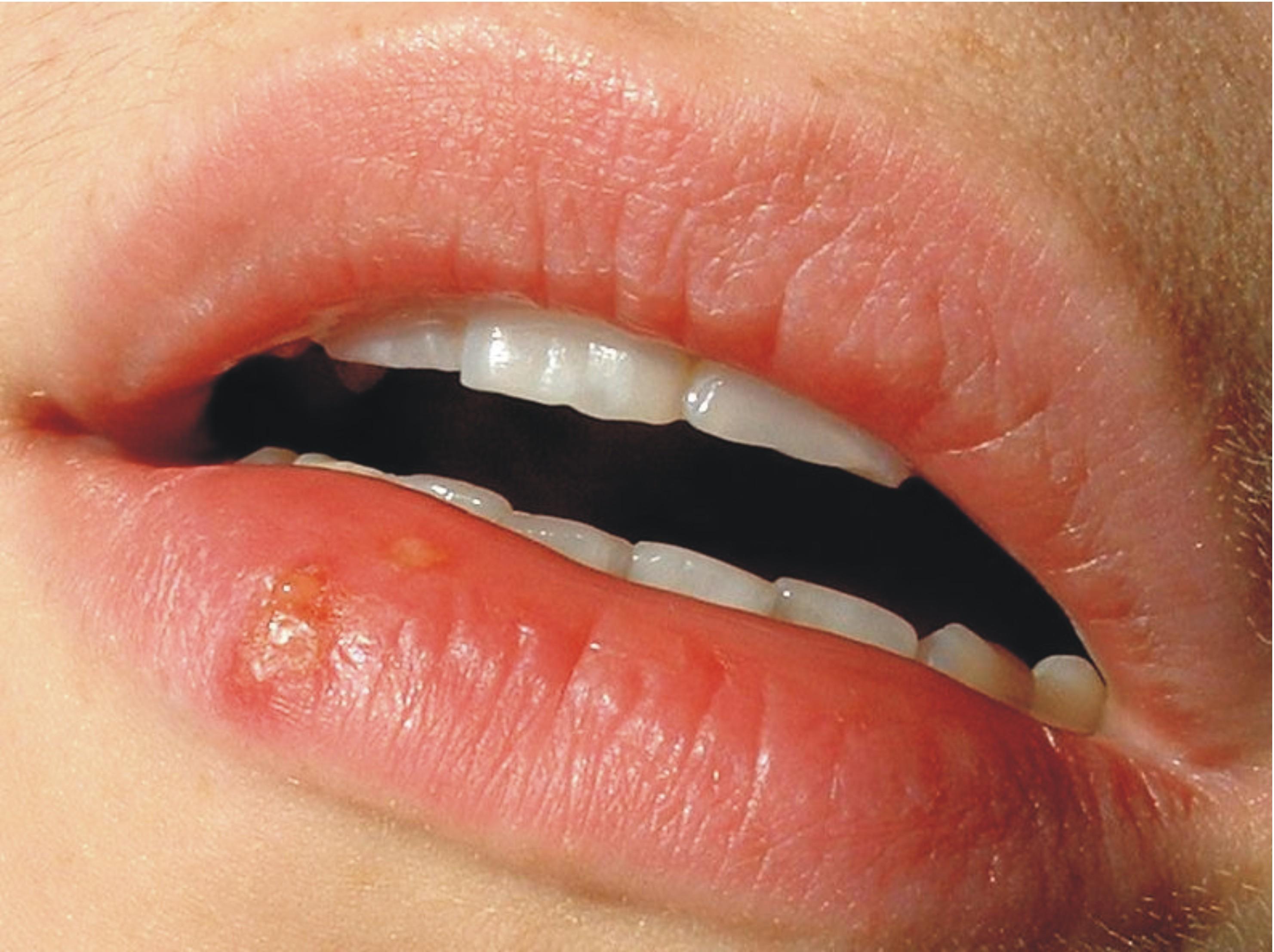 Прыщик половые губы 1 фотография