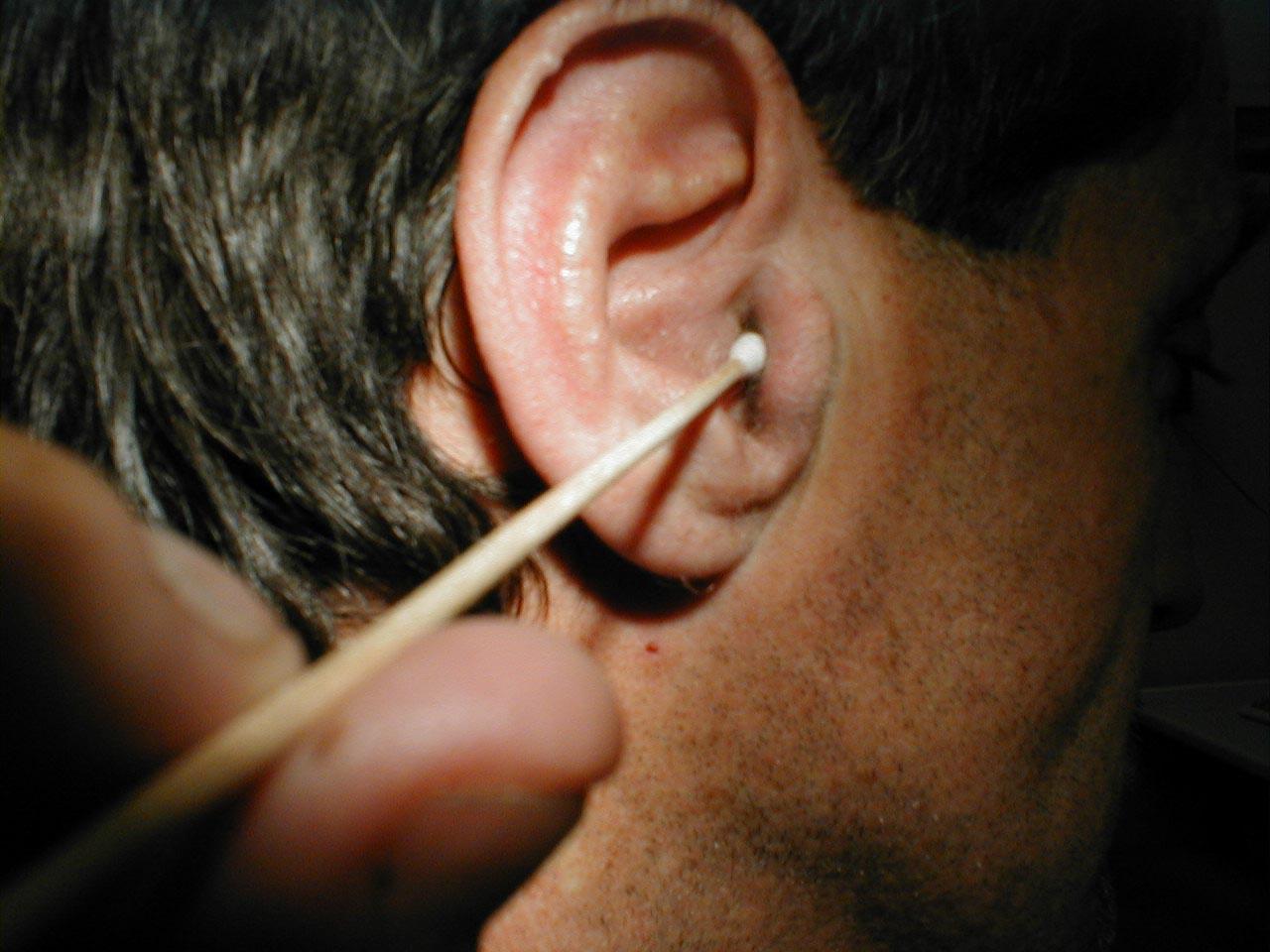 Чем прогреть ухо в домашних условиях